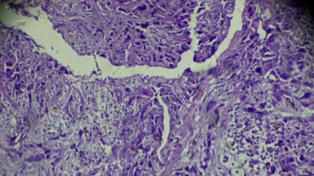 Cancer of nasopharynx (vesicular nucleus Cell Carcinoma) under light microscopy