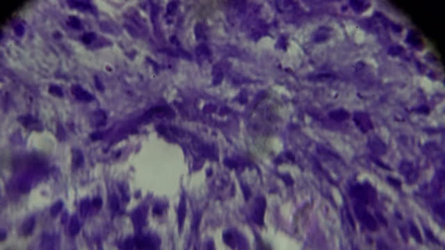 cancer of nasopharynx (vesicular nucleus cell carcinoma) under light microscopy - thyroid gland stock videos & royalty-free footage