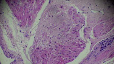 krebs der prostata-biopsie unter mikroskopie zoom in verschiedenen regionen - blase harnapparat stock-videos und b-roll-filmmaterial