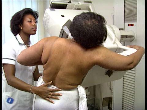 ovarian cancer gene identified england seq woman having mammograph - female reproductive organ stock videos & royalty-free footage