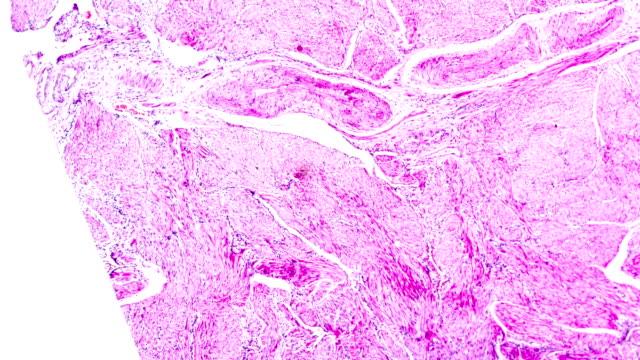 vídeos de stock e filmes b-roll de carcinoma of endometrium bio sample under microscopy zoom in different ranges - glândula pituitária
