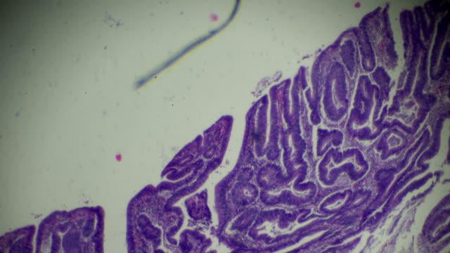 carcinoma of the large intestine (welldiff. tubular adenocarcinoma) under microscope - submucosa stock videos & royalty-free footage