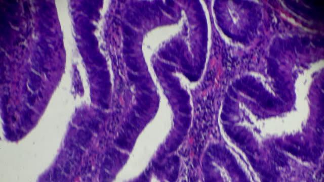 karzinom des dickdarms (gut diff röhrenförmigen adenokarzinom) unter mikroskop - radioaktive strahlung stock-videos und b-roll-filmmaterial