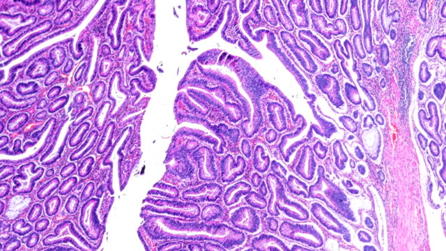 carcinoma of the large intestine (well diff. tubular adenocarcinoma) under microscope zoom in different areas - submucosa stock videos & royalty-free footage
