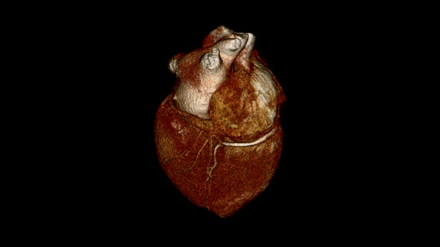Cardiac CT Angiography