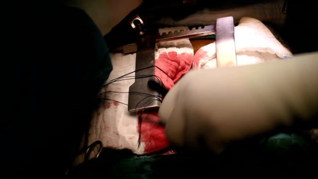 vídeos de stock, filmes e b-roll de cardiac surgeon and team perform open heart operation - cirurgião cardiovascular