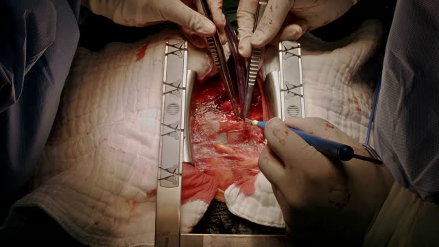 cardiac surgeon open pericardial - arteria video stock e b–roll
