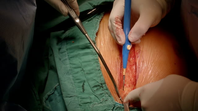 Cardiac surgeon perform median sternotomy