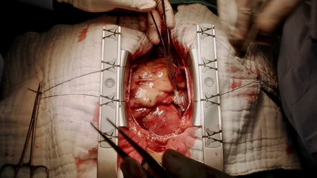 cardiac surgeon prepare right atrium for venous cannulation bypass - atrium heart stock videos & royalty-free footage
