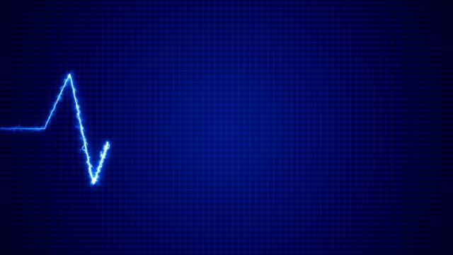 cardiogram cardiograph oscilloscope screen blue - oscilloscope stock videos & royalty-free footage
