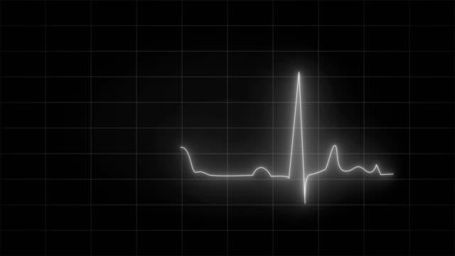 cardiogram ecg animation loopable video