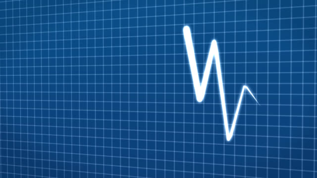 cardiogram line animation - zigzag stock videos & royalty-free footage
