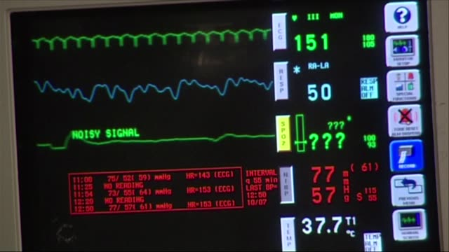 cardiomonitor - medical equipment stock videos & royalty-free footage