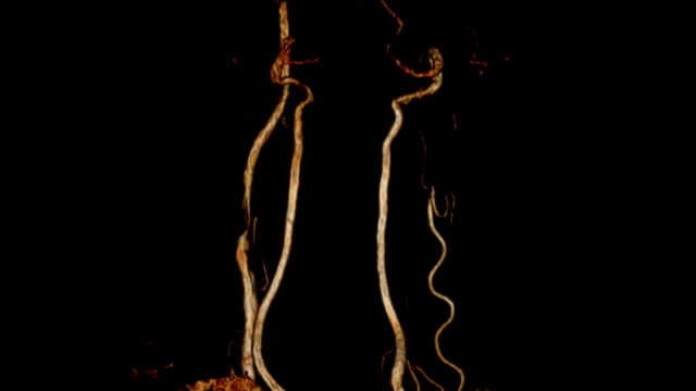 carotid artery ct angiogram - cervical vertebrae stock videos & royalty-free footage