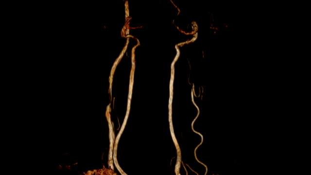 頚動脈 ct angiogram - 頚動脈点の映像素材/bロール