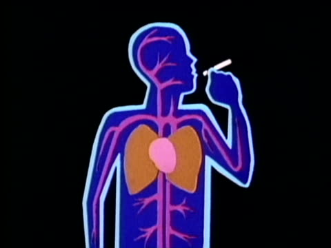 1986 montage cartoon showing cross section of human body with damages caused by smoking cigarettes, usa, audio - smoking issues stock videos & royalty-free footage