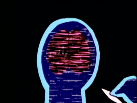 1986 cgi, cartoon showing cross section of human body with damages caused by smoking marijuana, usa, audio - human brain stock videos & royalty-free footage