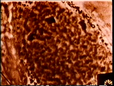 1980 scientific micrograph cell mitosis / united states / audio - 染色体点の映像素材/bロール