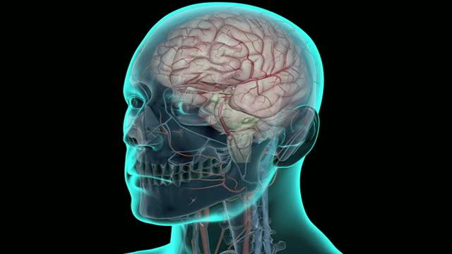 cerebral aneurysm - cerebral artery stock videos & royalty-free footage