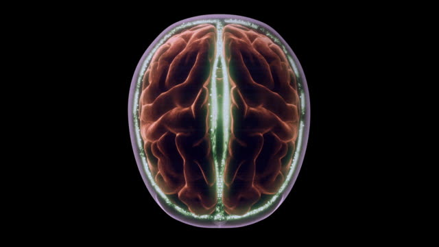 cerebrospinal fluid flows between the cerebral hemispheres of the brain in a computer-generated animation. - emisfero cerebrale video stock e b–roll
