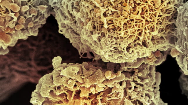 """cervical cancer cells, sem"" - micrografia video stock e b–roll"