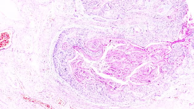 異なる領域における光顕微鏡ズーム下の子宮頸癌(扁平上皮癌) - 転移性腫瘍点の映像素材/bロール
