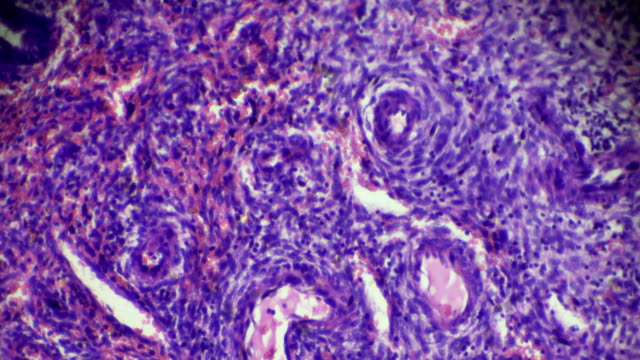 vídeos de stock e filmes b-roll de cervical polyp under microscopy zoom in different areas - glândula pituitária