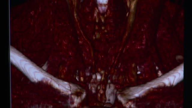 cu changing 3d cat scan image of human neck with muscles and tendons back to bones / burlington, vermont, usa - human neck stock videos & royalty-free footage
