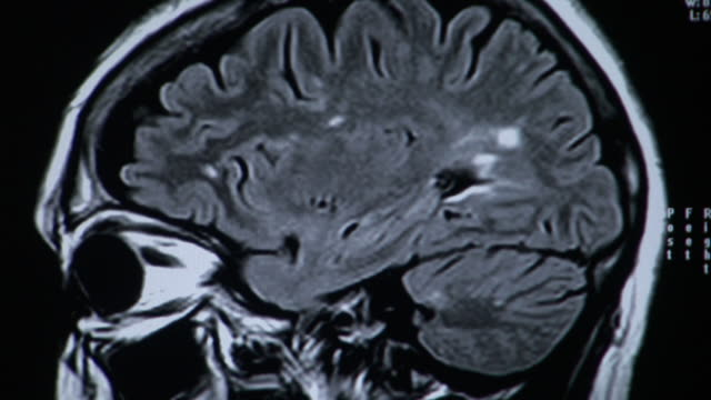 b&w cu changing image of human brain on mri scan / burlington, vermont, usa - human brain stock-videos und b-roll-filmmaterial