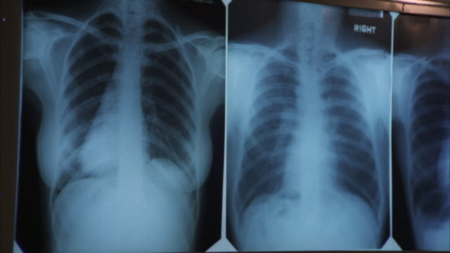 MS PAN Chest x-rays on light board