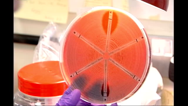 chief medical officer issues warning over drug-resistant infections; t1805082 date unknown location unknown: close shots of mrsa culture in petri dish - staphylococcus aureus stock videos & royalty-free footage