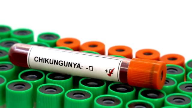 stockvideo's en b-roll-footage met chikungunya virus - bloedverlies
