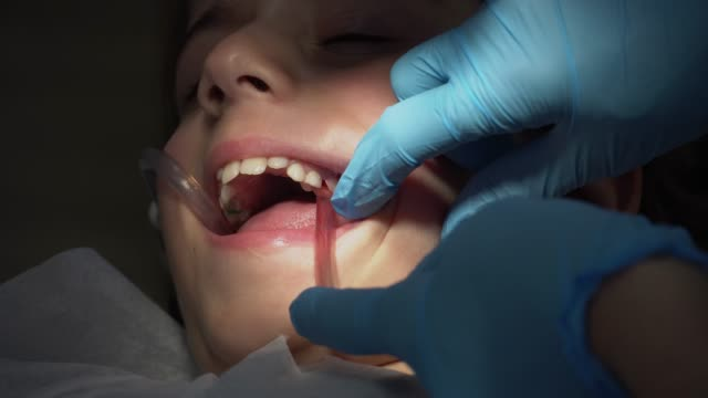 child having a dental filling operation. - human relationship stock videos & royalty-free footage