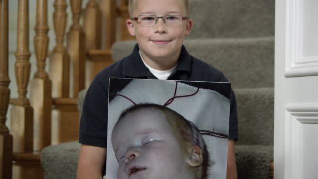 Child holding picture of himself as an infant with a birth defect