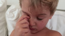 Child scratching eye, feeling tired. Handsome blond toddler boy face