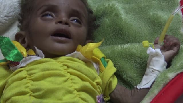 A cholera outbreak in Yemen has now surpassed 300000 suspected cases the Red Cross said Monday as the wartorn country reels from disease as well as...