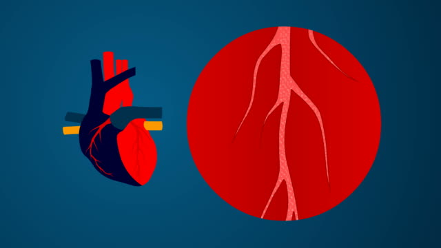 vídeos de stock, filmes e b-roll de colesterol animation - heart attack