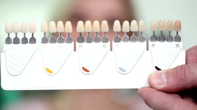 choose white of teeth - dental equipment stock videos and b-roll footage