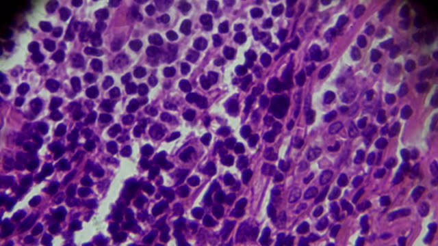 chronic appendicitis pathology under light microscopy - microscope slide stock videos and b-roll footage