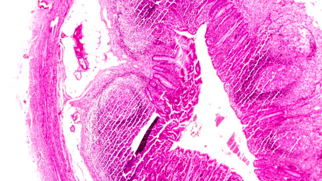 stockvideo's en b-roll-footage met chronische blindedarmontsteking pathologie onder lichte microscopyzoom in verschillende gebieden. - chronische ziekte