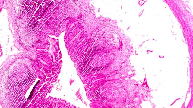 vidéos et rushes de pathologie chronique d'appendicite sous le microscopyzoom léger dans différents secteurs. - radiation