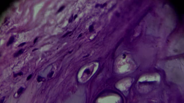 chronic bronchitis under microscopy zoom in different areas - stain test stock videos & royalty-free footage