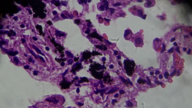 vídeos de stock, filmes e b-roll de bronquite crônica sob microscopia zoom em diferentes áreas - bronquite