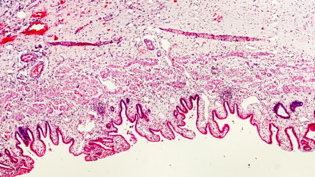 vídeos de stock, filmes e b-roll de amostra patológica humana de cholecistite crônica o microscópio - fígado humano
