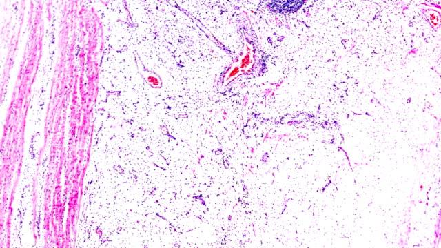 光顕微鏡下の慢性胃潰瘍 - 消化性潰瘍点の映像素材/bロール