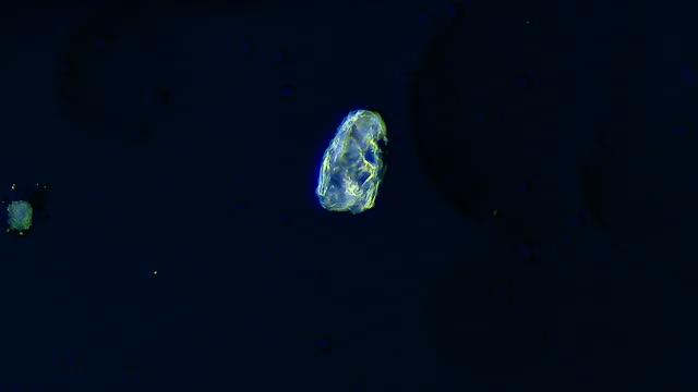 vidéos et rushes de ciliate se déplaçant dans l'eau, grossissement microscopique 20x - paramécie