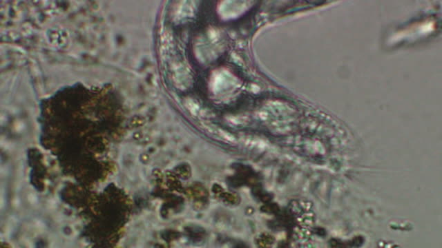 ciliate unidentified - ciliate stock videos and b-roll footage