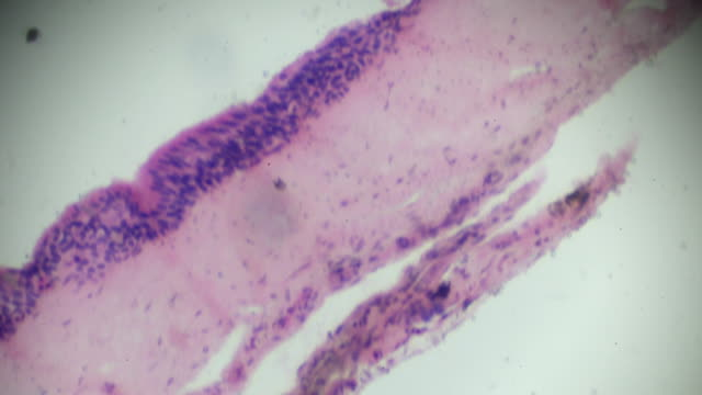 vídeos de stock, filmes e b-roll de seção epitelial ciliada na microscopia - tecido humano