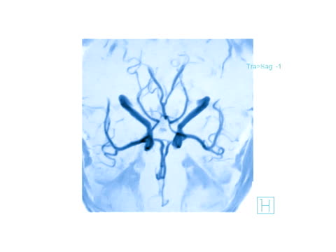 vídeos y material grabado en eventos de stock de circle of willis. coloured rotating magnetic resonance angiography (mra) scan of blood vessels in the circle of willis (centre) in the brain. this network of arteries at the base of the brain supply the organ with oxygenated blood.. - arteriograma