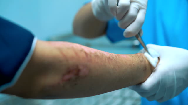cleaning wound on patient arm who got bicycle accident last week - last stock videos & royalty-free footage